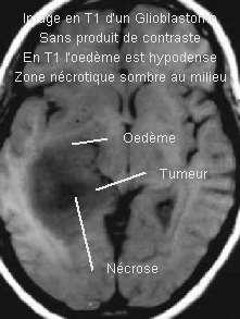 http://gfme.free.fr/image/GlioblastomeT1.jpeg